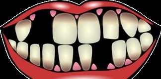 Aparaty ortodontyczne – kiedy się je stosuje i jakie są ich rodzaje?